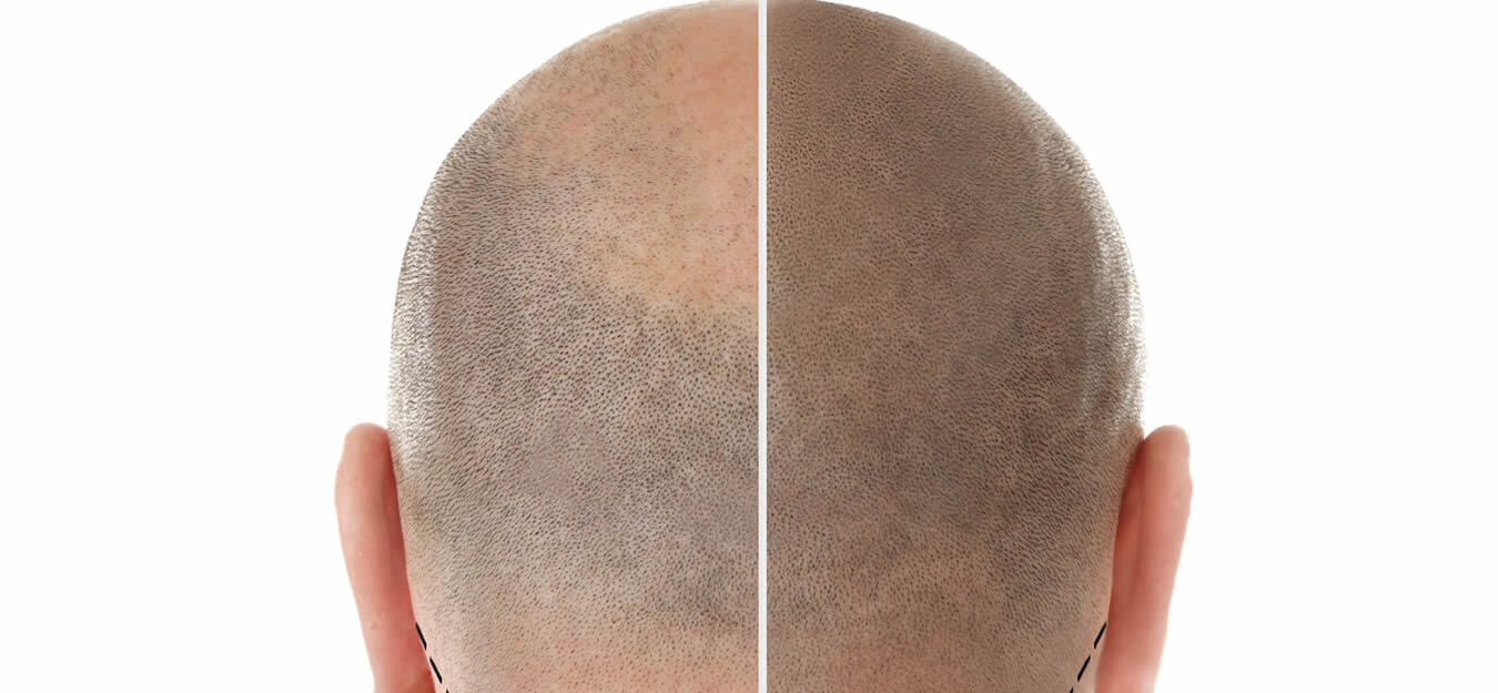Hair Loss Treatment Available At Artistic Beauty In Nelson NZ