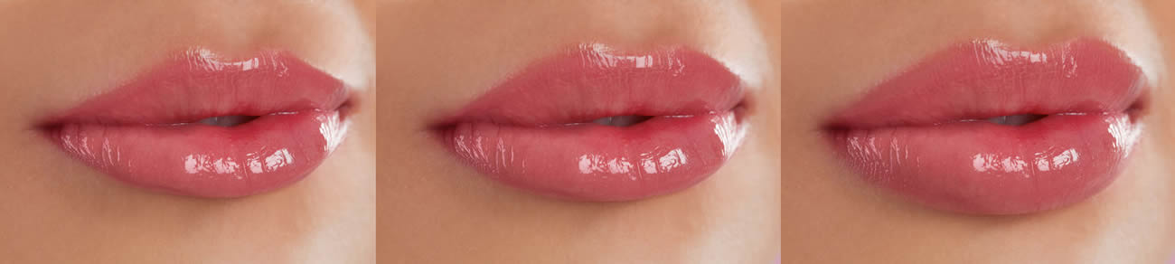 Lip Enhancement Treartments Provided By Artistic Beauty In Nelson NZ