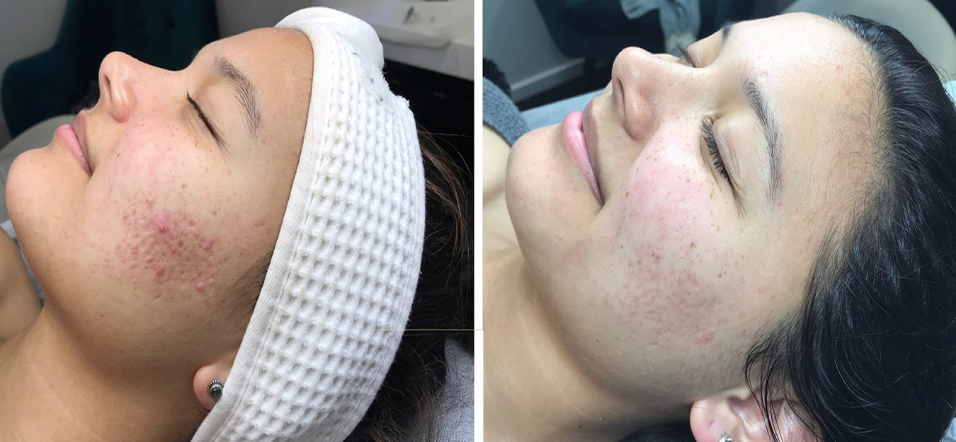 Micro Needling Treatments Available At Artistic Beauty In Nelson NZ