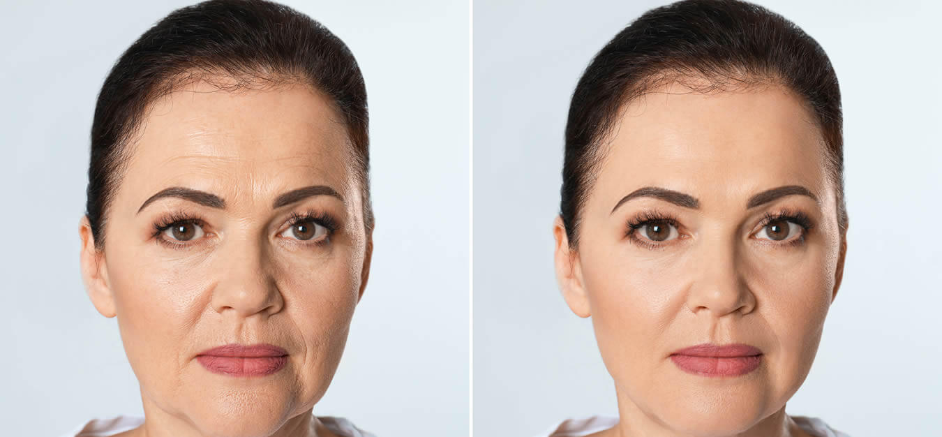 Skin Rejuvenation Available At Artistic Beauty In Nelson NZ